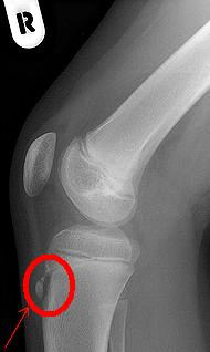脛骨粗面骨折